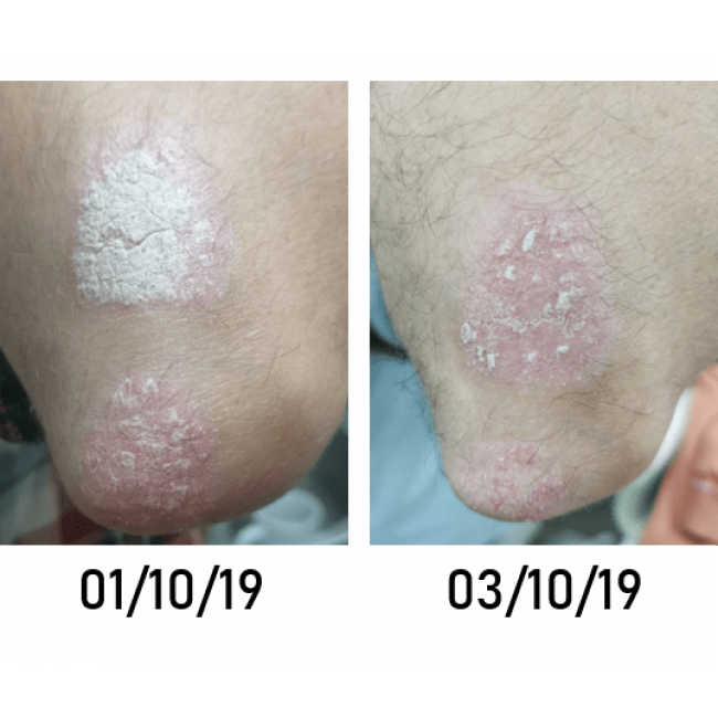 topical application of Osmio Double Helix Water
